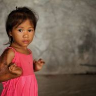 Jocy before surgery at the Tebow CURE Hospital.jpg